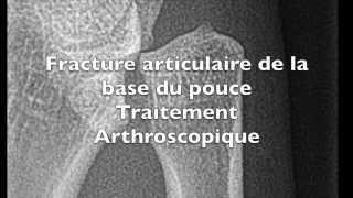 Chirurgie du pouce sous arthroscopie pour une fracture de Bennett, Toulouse
