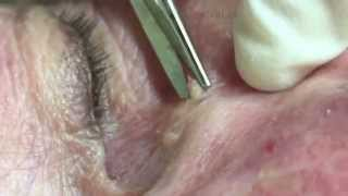 Removing growths around the delicate eye area. For medical education- NSFE.