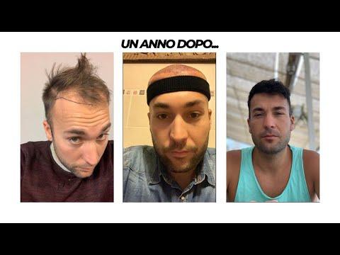 1 ANNO DAL TRAPIANTO DI CAPELLI IN TURCHIA!! ECCO LA MIA TRASFORMAZIONE
