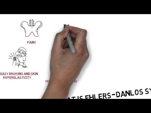 What is Ehlers-Danlos syndrome? - Educational Video
