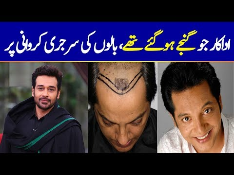 Pakistani Actors Who Got Hair Transplants | Some Were Completely Bald