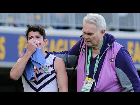 Brayshaw hit sparks Derby chaos