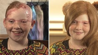 Video 11-Year-Old Girl Scalped From Carnival Ride Gets Wig For First Day of School download MP3, 3GP, MP4, WEBM, AVI, FLV Oktober 2018