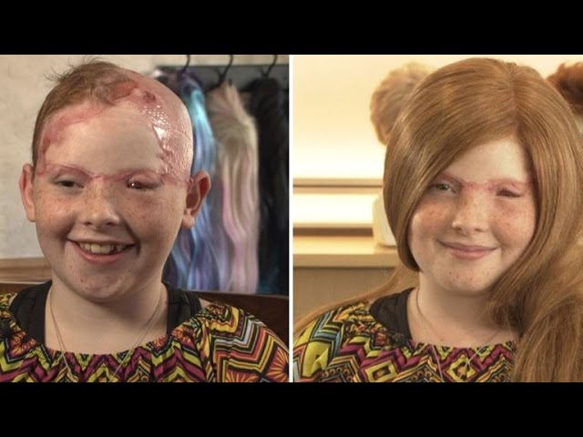 11 Year Old Girl Scalped From Carnival Ride Gets Wig For First Day Of School