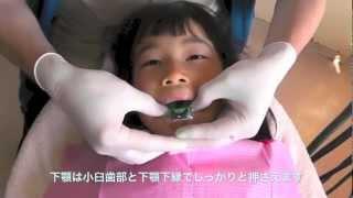 小児の歯型を取る!「アイトレー」 thumbnail