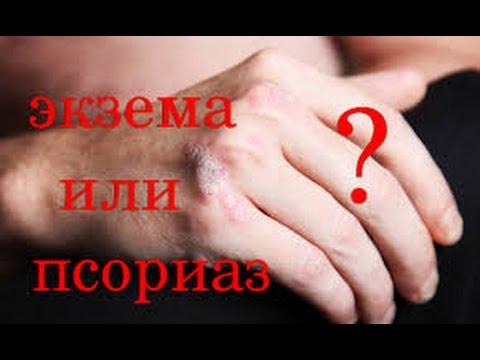 butakova-oa-bakterii-psoriaz
