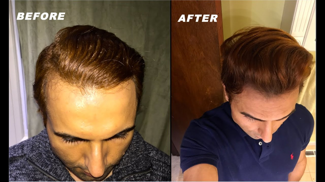 What to do about a receding hairline