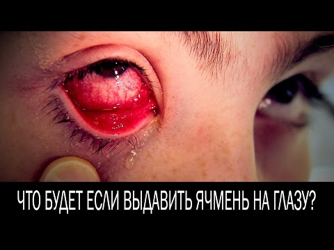 Ячмень – лечение ячменя -