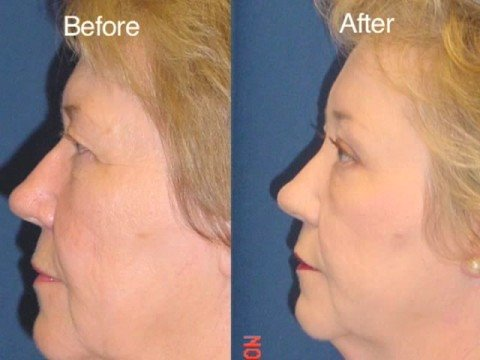 Brow lift for Droopy Eyelids with Dr Ricardo Rodriguez in Baltimore