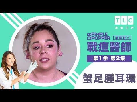 戰痘醫師 Dr. Pimple Popper - YouTube