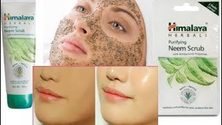Himalaya Neem Scrub For Oily Skin,Blacheads ,Acne & Glowing Skin |Review,Price & How to Use