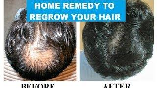 HOME REMEDY TO REGROW YOUR HAIR II बालो की पुनर्वृद्धि का घरेलू उपचार II