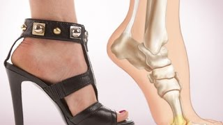 Danger: Know About High Heels before Wearing it