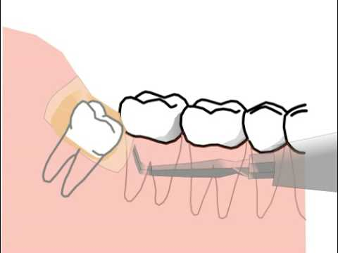 Extraction Of Lower Wisdom Tooth Cartoon Without Blood Youtube