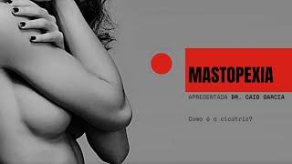 Mastopexia -  Como é a cicatriz?