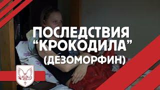 """Последствия """"КРОКОДИЛА"""" (Дезоморфин)"""