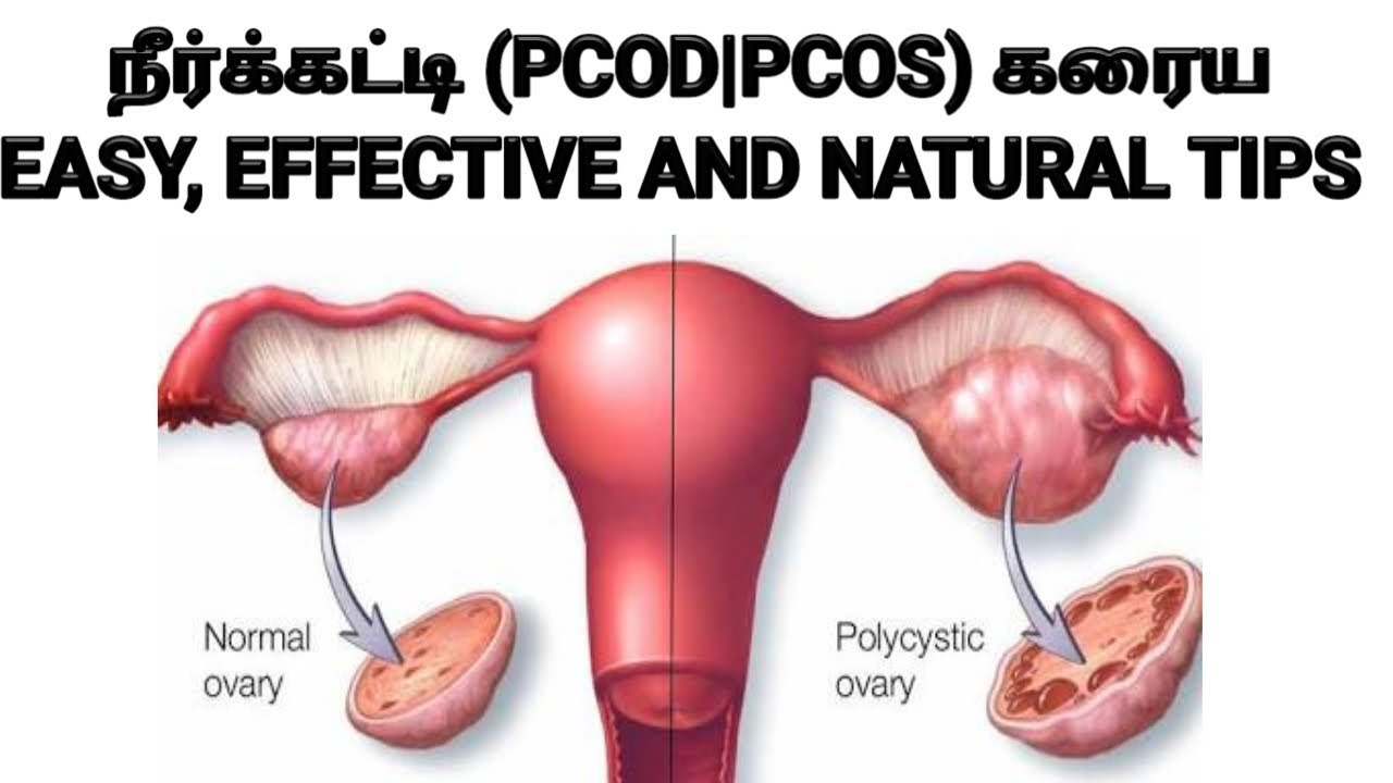 நீர் கட்டி கரைய குணமாக how to cure PCOD PCOS problem naturally in tamil  neerkatti karaya kuraiya