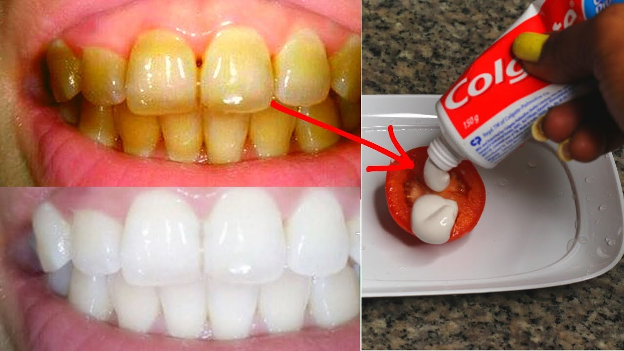 Turn Your Yellow Teeth Pearly White (2 Minutes)