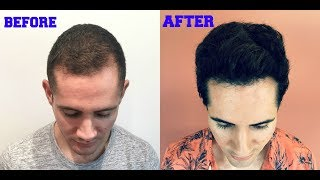 Grow Back Your Hair in 6 Months | PRP vs. FUT Hair Transplant