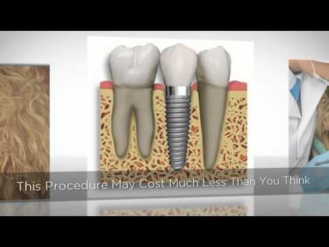 Need Dental Implants New Orleans Call 504 229 2811