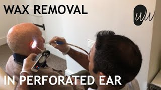 Ear Wax Removal in Ear with Perforated Eardrum - #388