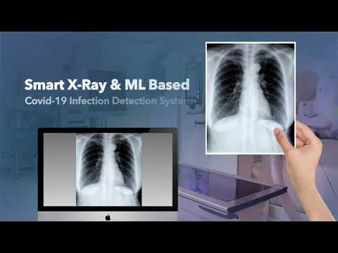 X-Ray Based Covid 19 infection detection
