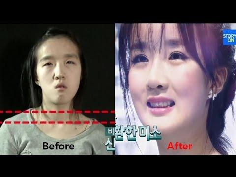 Plastic surgery asian face