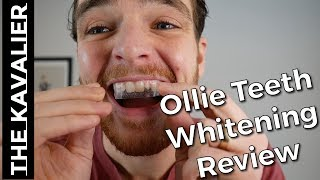 Honest Ollie Teeth Whitening Review - After the Transformation Kit