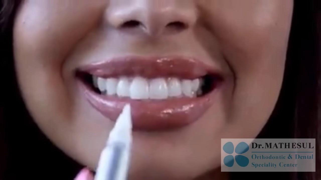 Teeth Whitening In Viman Nagar Pune Kalyaninagar Koregaon Park