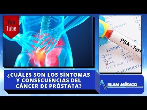 drogas prostatitis síntomas causas y tratamientos
