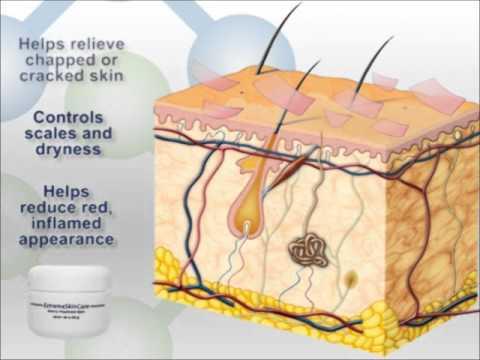 Psoriasis & Eczema Treatment Animation