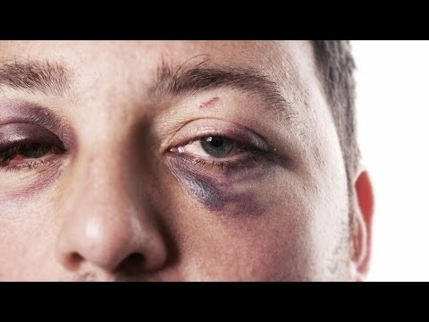 How to Treat a Black Eye | First Aid Training
