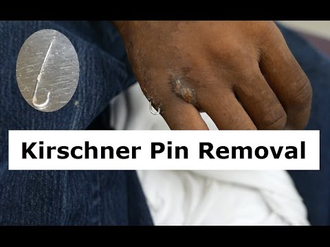 Kirschner Wire Removal Procedure