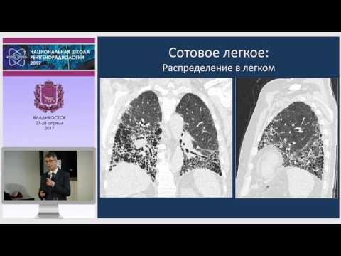 И.Е. Тюрин - Идиопатические интерстициальные пневмонии