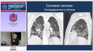 видео Интерстициальная пневмония