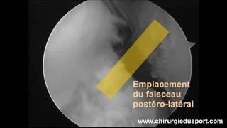Rupture partielle du ligament croisé antérieur (LCA) ligamentoplastie DIDT TLS postéro-latéral