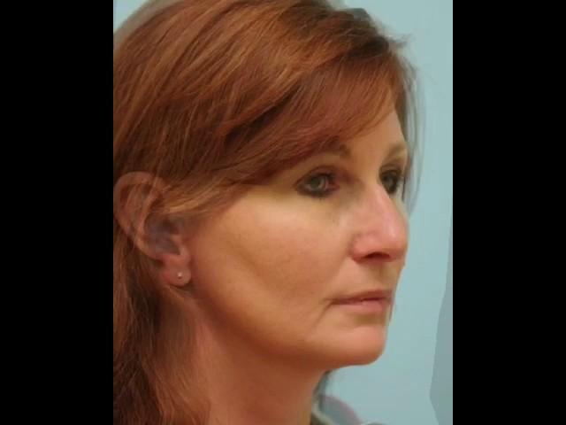 Dallas Rhinoplasty Video Transformation