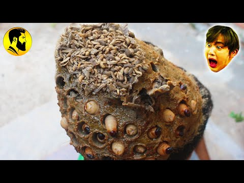 Biggest Dandruff Flaky With Full Worms Inside Big Nest On Top Hair Best Safe Way Removal By Hand 161