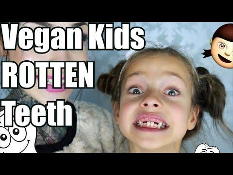 VEGAN ROTS Children's Teeth
