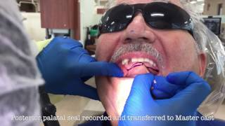 The Immediate Denture Process