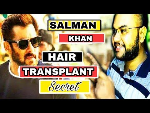Salman khan hair transplant secret||(PART 1) #tannudada