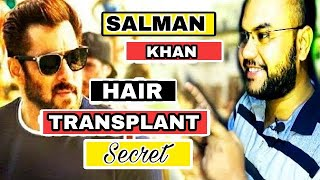 Salman khan hair transplant secret||(PART 1)