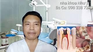 khi nào cần điều trị tủy răng
