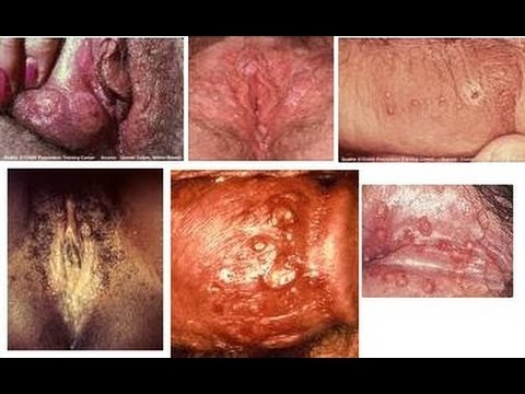 Genital Discoloration Pictures 29