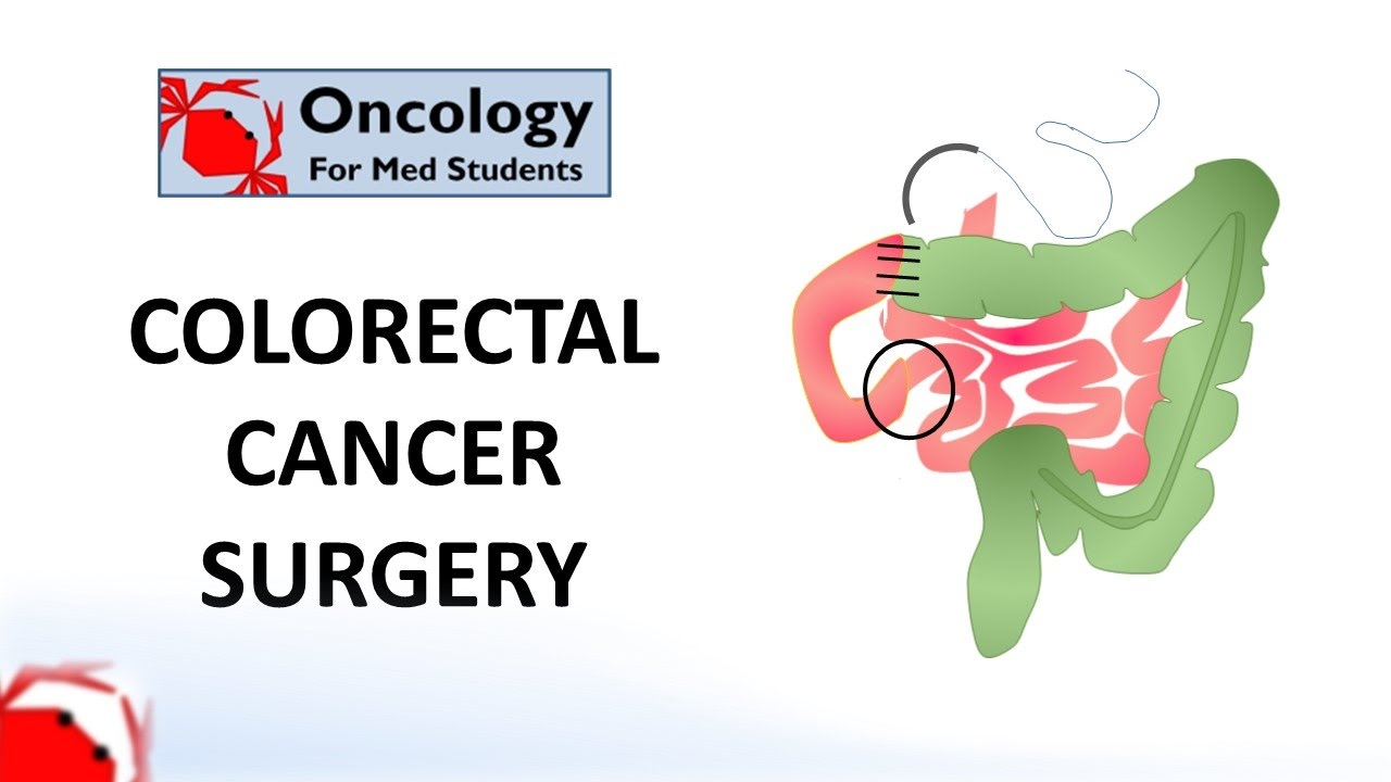 Colorectal Cancer Surgery Principles And Types Youtube