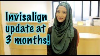 INVISALIGN UPDATE 3 MONTHS | 32 aligners with elastics
