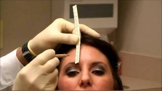 Botox Injection by Facial Plastic Surgeon Brian P Maloney in Atlanta Georgia