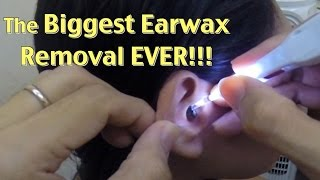 The Biggest Ear wax Removal EVER!!!