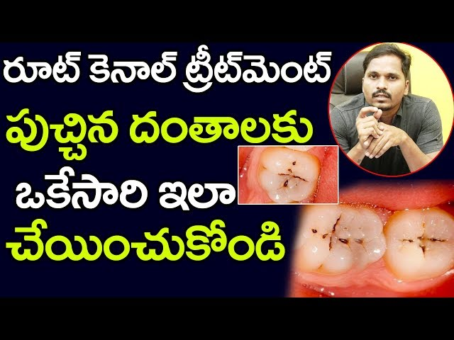Root Canal Treatment | Dental Health Tips | పుచ్చిన దంతాలకు ఒకేసారి ఇలా చేయించుకోండి