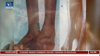 Outbreak Of Monkeypox In Nigeria  | Special Report |
